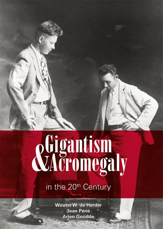 Gigantism & Acromegaly