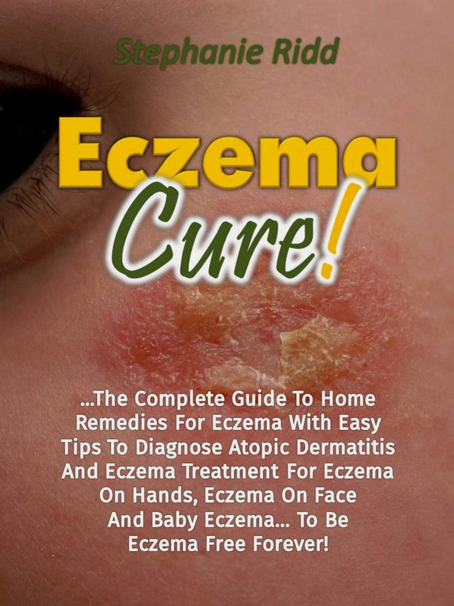 Eczema Cure!: The Complete Guide To Home Remedies For Eczema With Easy Tips To Diagnose Atopic Dermatitis And Eczema Treatment For Eczema On Hands, Eczema On Face And Baby Eczema... To Be Ecz