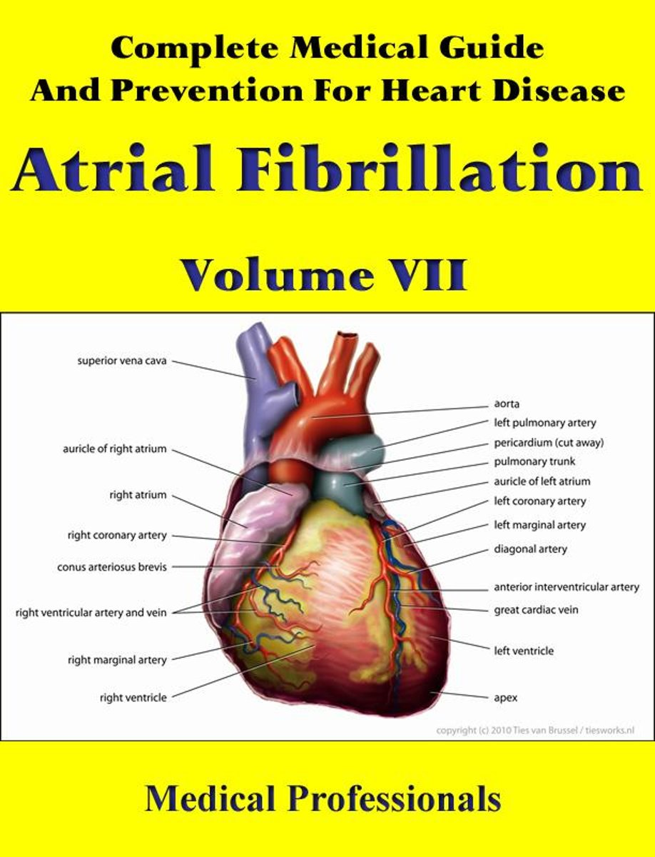 Complete Medical Guide and Prevention for Heart Diseases Volume VII; Atrial Fibrillation