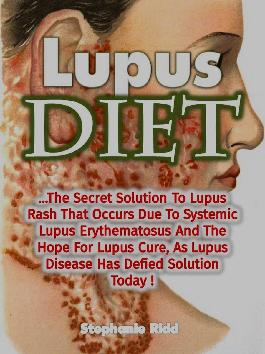 Lupus Diet: The Secret Solution To Lupus Rash That Occurs Due To Systemic Lupus Erythematosus And The Hope For Lupus Cure, As Lupus Disease Has Defied Solution Today!