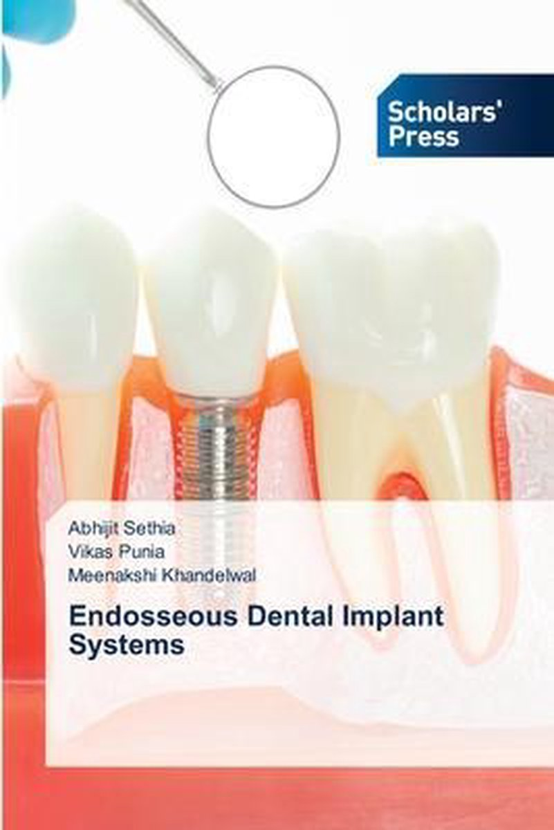 Endosseous Dental Implant Systems