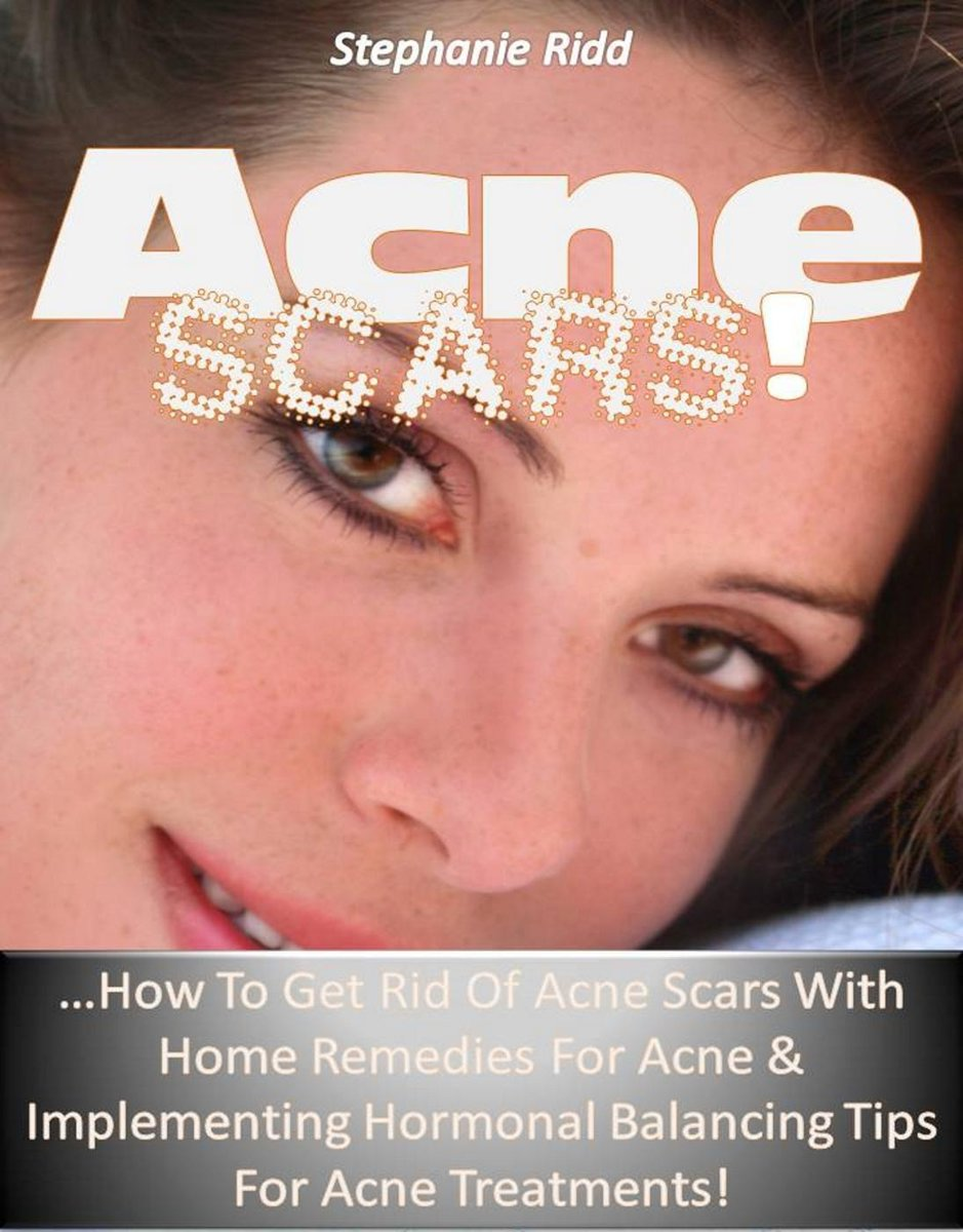 Acne Scars! …How to Get Rid of Acne Scars with Home Remedies for Acne & Implementing Hormonal Balancing Tips for Acne Treatments!